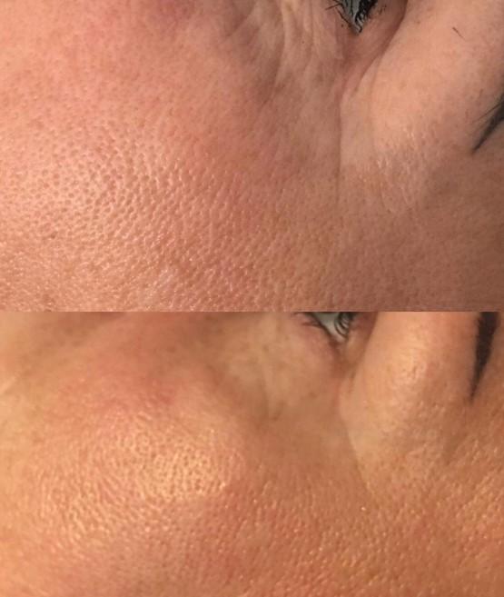 Indiba - zabieg na twarz